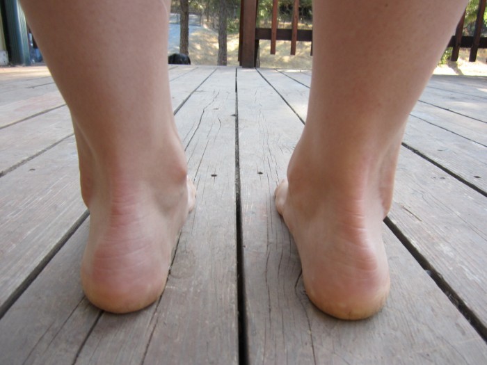 Factors associated with Achilles tendinopathy and MTSS