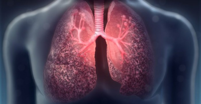 Exercise for airway clearance in Cystic fibrosis