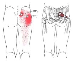 Trigger points and Myofascial Pain Syndrome