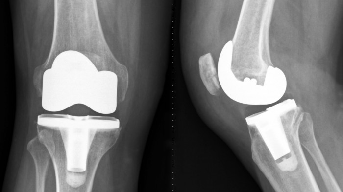 Physiotherapy for patients with total knee arthroplasty