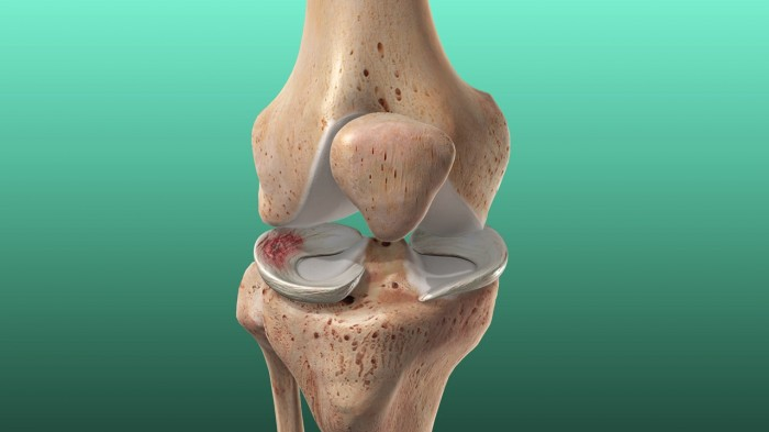 Knee function improvement in patients with meniscus tears