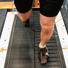 Split-belt treadmill walking and adaption for amputees